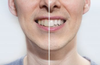 teeth-whitening-toothpaste-before-after
